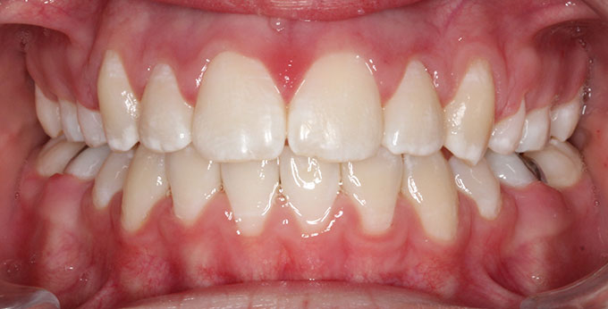 Adult teeth after treatment which consisted of removal of four premolar teeth and adults braces
